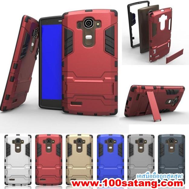 (002-070)เคสมือถือ LG G4 เคสพลาสติกซิลเวอร์โกลสไตล์กันกระแทก
